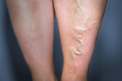 足 の 甲 血管 浮き出る