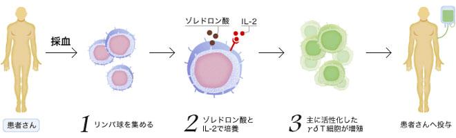 ガンマ・デルタT細胞療法(γδT細胞療法)