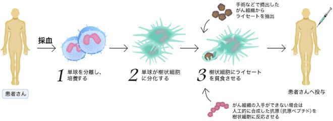 樹状細胞ワクチン療法(DCワクチン療法)